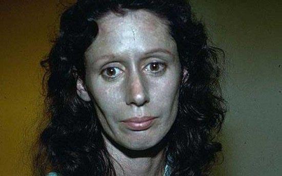Rosemary Jacobs, femme à la peau argentée suite à des gouttes nasales - 2Tout2Rien