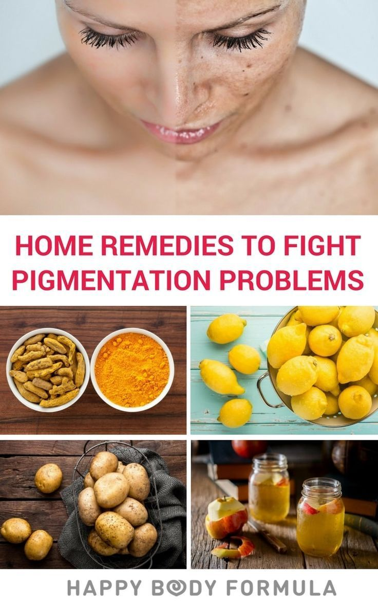 Home Remedies To Fight Skin Pigmentation Problems With Images