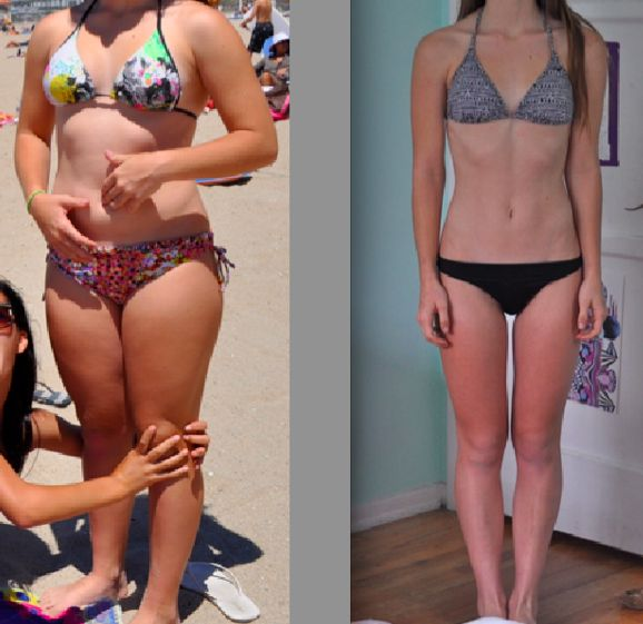58 best Diet before and after images on Pinterest ...