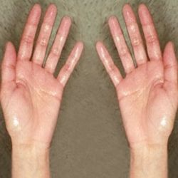 Home Remedies For Sweaty Hands - Natural Treatments & Cure For Sweaty Hands | Search Home Remedy