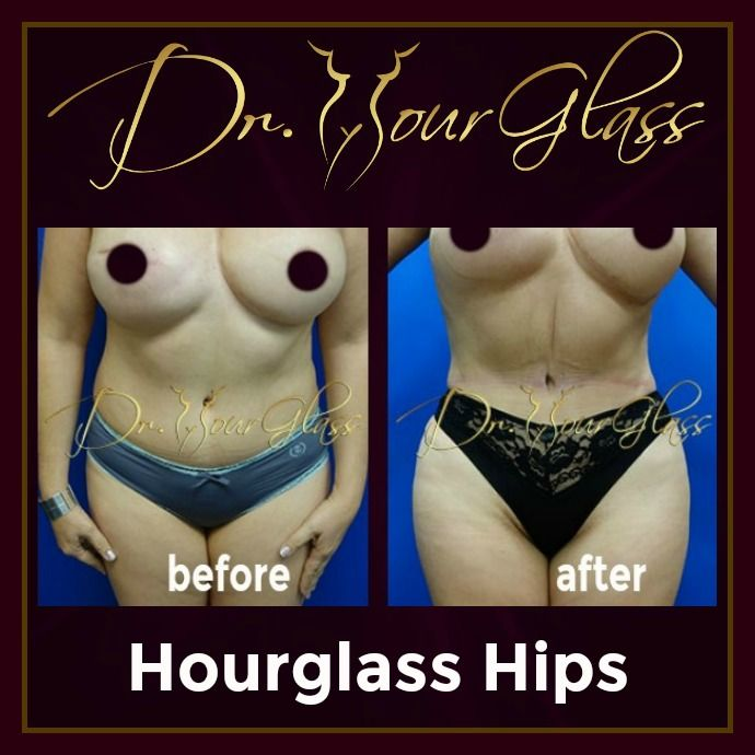 This patient just want to have gorgeous hips so she underwent an Hourglass Hips procedure. By looking at the result you can certainly confirm that this hip procedure is the best because it provides her stunning hips and sexier waistline better than before.
