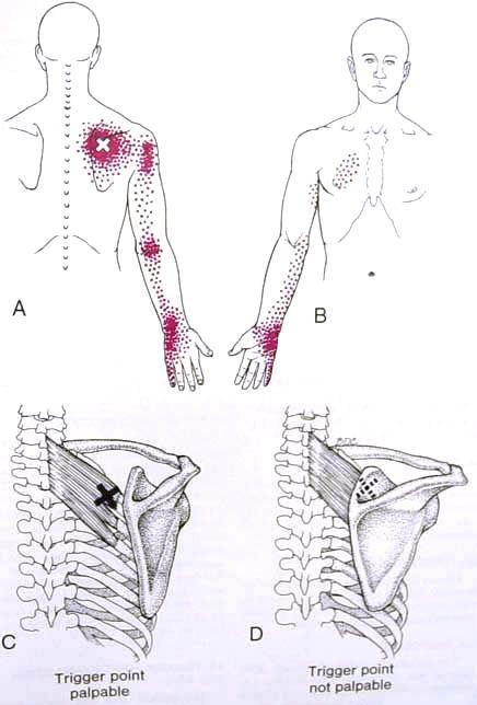 Serratus Pos Sup Trigger Point Diagram