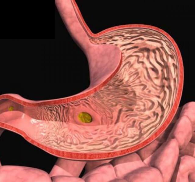 Язва желудка и двенадцатиперстной кишки: 19 СУПЕР эффективных народных средств