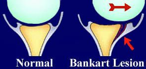 #shoulder surgery for Shoulder Dislocation - Bankart Lesion - Labral Tear  It's nice to see what I had done