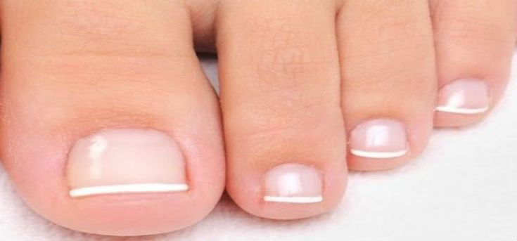 Toenail Fungus Cure may not be necessary in mild cases of fungal nail infection. But if you don't treat the infection, there's a chance it will spread to other nail