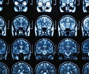 Brain Matters: Corpus Callosum