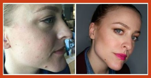 Homemade Acne Treatment - Acne and Men: How to Deal With Male Acne * Click image to read more details. #pimpleextractor
