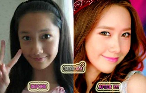 Before After Yoona | sinirli before after