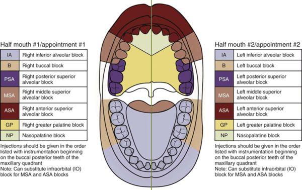 Local anesthesia options during dental hygiene care - Registered Dental Hygienist