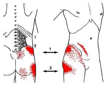 Trigger Point Referred Pain Pattern of the Quadratus Lumborum When trigger points are present pain may be referred to the low back and spine, the front hip bone moving downwards along the bone of the hip (iliac crest), and the insides of your upper thighs. But also pain patterns can be in the glute or…