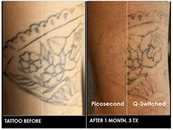 Colorado Welcomes World's Most Advanced Technology for Tattoo Removal