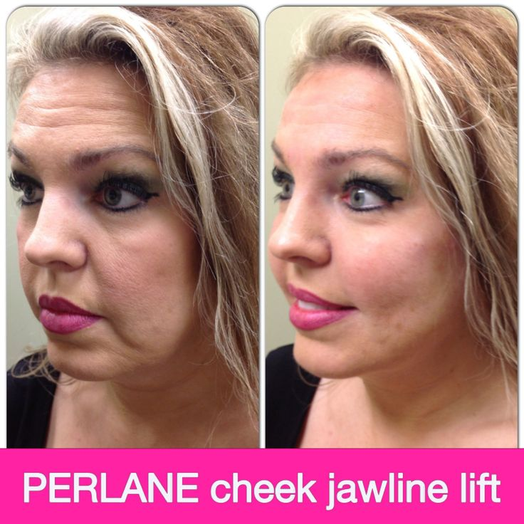 Perlane before and after, facial filler