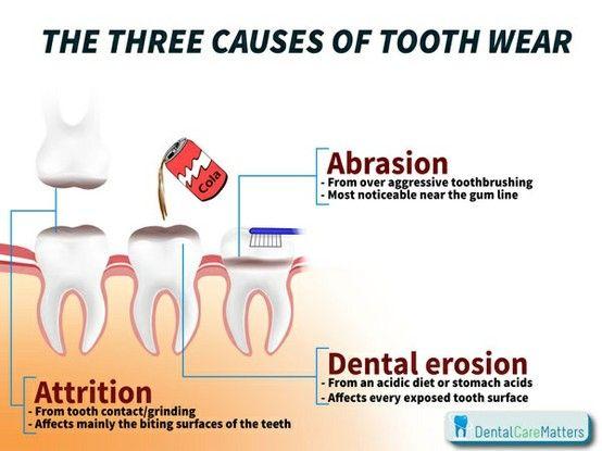 how to avoid gum erosion