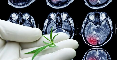 "https://www.endoca.com/blog/cbd/cbd-protect-brain-strokes/  ""The study concluded that CBD has a powerful neuroprotective effect against OGDR injury caused by toxicity, energy crisis or cell metabolism disturbances. CBD prevented oxidative stress. The antioxidant defense preserved the cell bio-energy by activating the pentose-phosphate pathway and maintaining the energy equilibrium, stabilizing the neurons"""