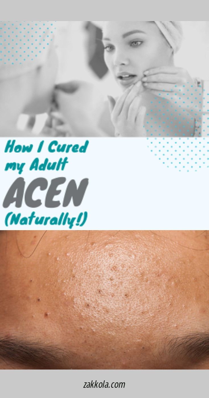 Look at the webpage to see more about acne. Click…