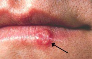 Los herpes en tus labios tienen las horas contadas. ¡Prueba estos remedios caseros!