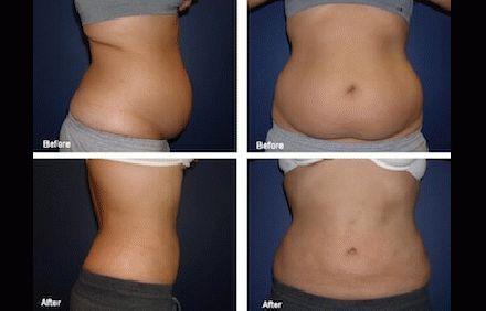 Slim Down For Summer With Laser Lipo! Safe, Non-Invasive, Non-Surgical, & Zero D