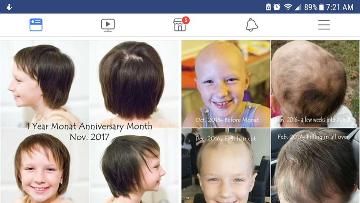 """So, since I get messages almost on a weekly basis on updates on my daughter's hair, I thought I'd do a quick 1 year update 🙂 It's been 1 year since we decided to give #Monat a try after 2 years of dealing with #alopecia universalis. I still can't believe shampoo can do this!! She's used: Classic Confidence, Rejuveniqe now the Volume System, root lifter, blow out cream, S3 supplements. We are so pleased to see this kind of difference!! No child should have to be prescribed #methotrexate !"