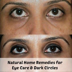 Natural Home Remedies for Eye Care & Dark Circles ...