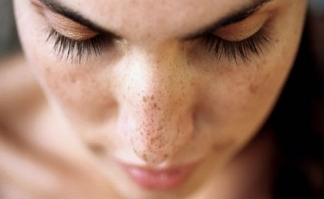 """#1 SKIN TAGS Skin tags appear when skin rubs together and folds. Apply apple cider vinegar or tea tree oil, 3 times aday for 2 weeks. According to Shareably: """"Often debated as to the cause of skin tags, perhaps they occur more due to genetic s for example, but it is widely accepted that skin tags come about when your …"""