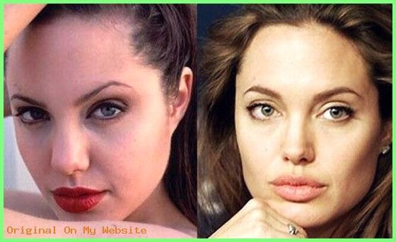 #Angelina #Jolie #Perfect #photos #Plastic #rhinop…