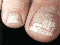 How to treat Keratin granulations from nail polish drying them out and wearing nail polish for too long http://runnersfootcare.blogspot.com/2013/05/do-you-have-issues-with-keratin.html