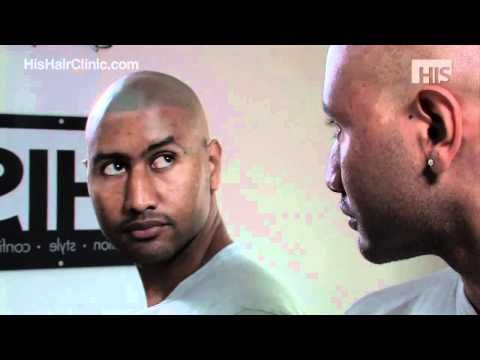 Hair Loss Treatment for Black Men from HIS Hair Clinic - Anthony's Story -  How To Stop Hair Loss And Regrow It The Natural Way! CLICK HERE! #hair #hairloss #hairlosswomen #hairtreatment Visit http://www.hishairclinic.com for more information, our gallery for before & after pictures of clients http://www.hishairclinic.com/gallery/ and our active forum to speak to... - #HairLoss