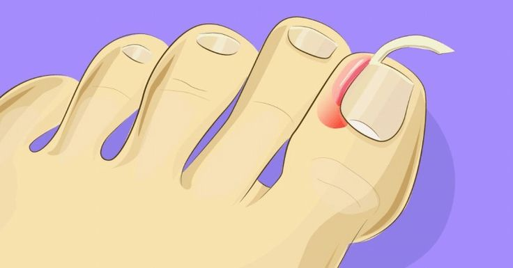 Auw! Ingegroeide nagels doen pijn! Door dit te doen heb je er geen last meer van.