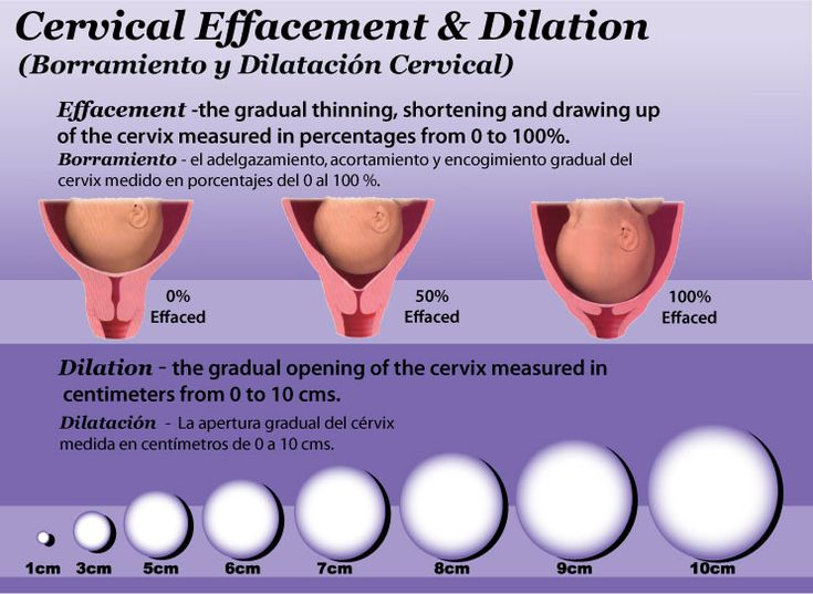 how to tell if you are dilating during pregnancy