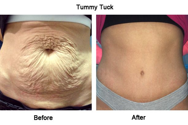 understanding the tummy tuck surgery:- risk, treatment and cost