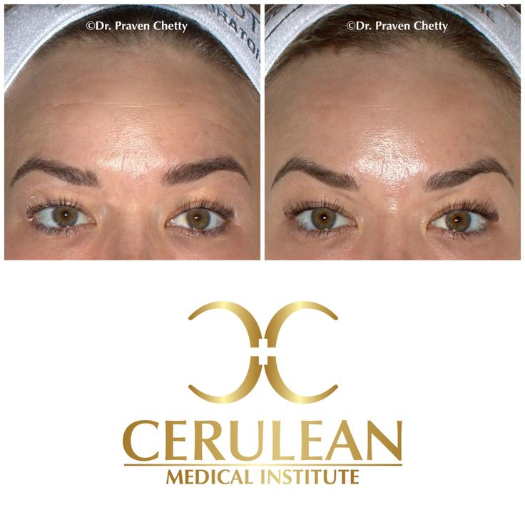 Brow Tuesday: Choose Botox by Dr. Praven Chetty for brow balancing and a youthful look in Kelowna, BC. #Botox #Brow #Gorgeous #Skin #Summer #StayProtected #CeruleanMedicalInstitute #DrPravenChetty #Cosmetic #Dermatology #Advanced #SkinCare #Beautiful #Kelowna #Okanagan