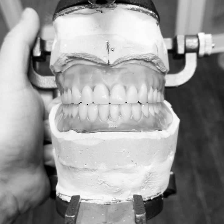 Damn fine dentures made right here in Roseville MN.  . . #dentistry #dentist #smile #dental #dentista #teeth #doctor #tooth #dentalstudent #cosmeticdentistry #dentists #beautiful #dr #smile #dentures #falseteeth #newsmile #dentaduras #sonrisa #dentalassistant #dentallab #Minnesota #Roseville #twincities #denture #denturerepair