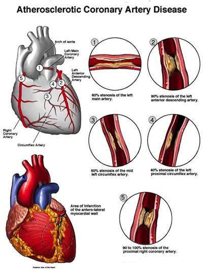 understanding angina Angina is usually caused by coronary artery disease (cad), so diagnosing angina really means diagnosing cad—the underlying condition.