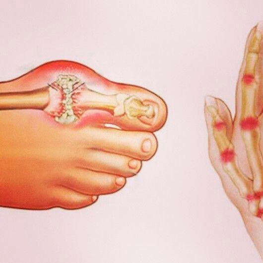 #romatizma tedavisi icin sifali bitkiler sayfamizda: http://www.sifalibitkitedavisi.com/romatizma-tedavisi-icin-sifali-bitkiler.html