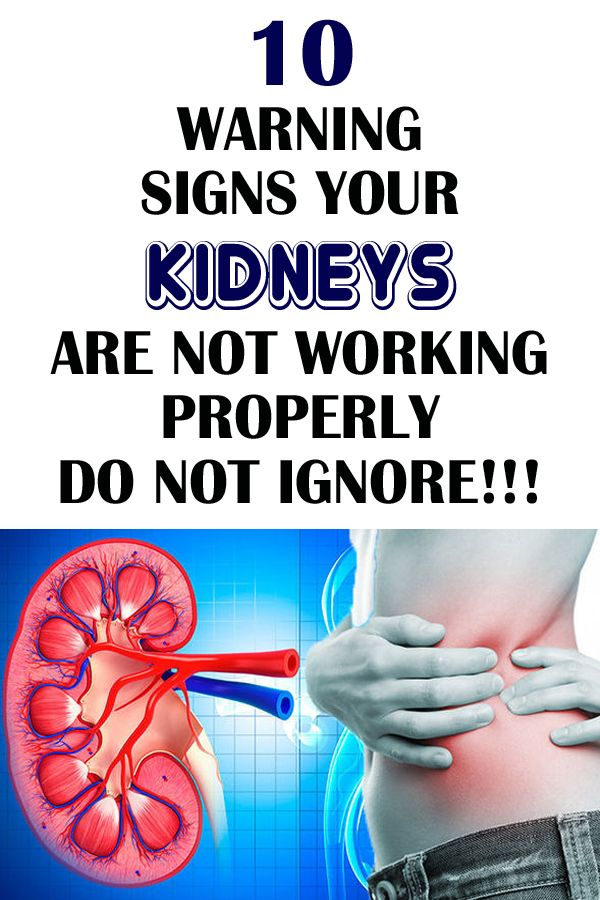 10 Signs That Your Kidneys Aren T Working Properly In 2020 Medical Jokes Natural Remedies For Migraines Medical Mnemonics