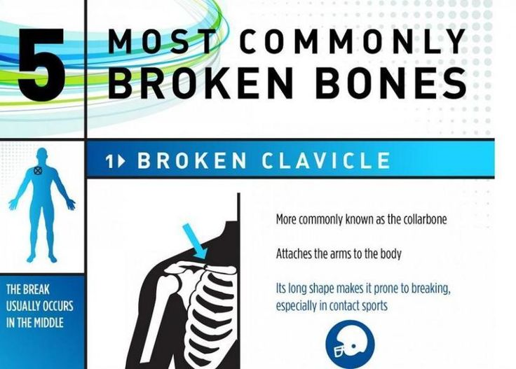 Snap, Crackle, Pop: 5 Most Commonly Broken Bones In The Human Body #medical #daily, #medicaldaily.com, #health #news, #medical #news, #medical #science, #medicine, #drugs, #treatment, #disease http://solomon-islands.remmont.com/snap-crackle-pop-5-most-commonly-broken-bones-in-the-human-body-medical-daily-medicaldaily-com-health-news-medical-news-medical-science-medicine-drugs-treatment-disease/  # Snap, Crackle, Pop: 5 Most Commonly Broken Bones In The Human Body Here are five out of the 206…