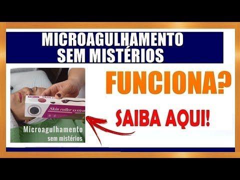 Microagulhamento sem Mistérios Funciona? Qual Valor? Onde Comprar?