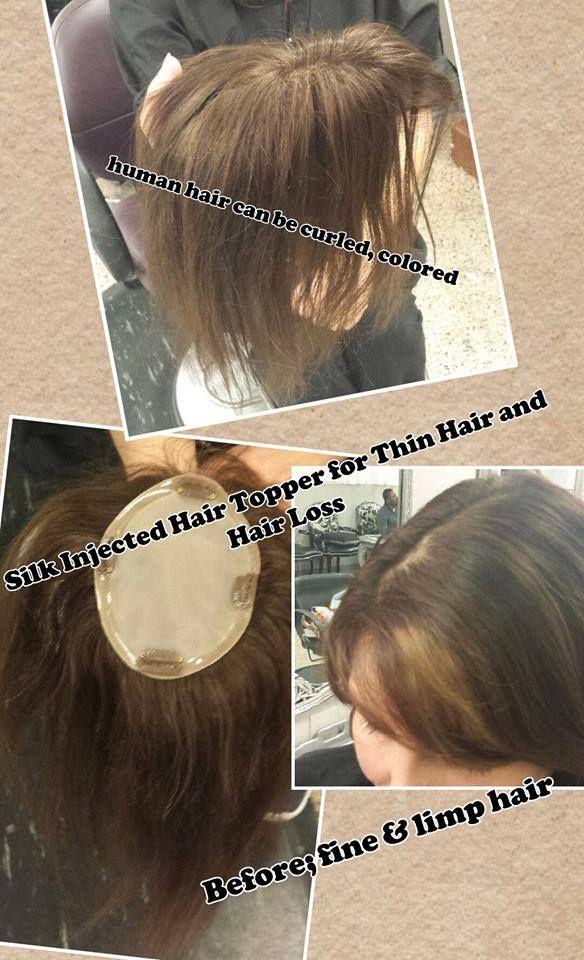 Wigs Female Hair Loss