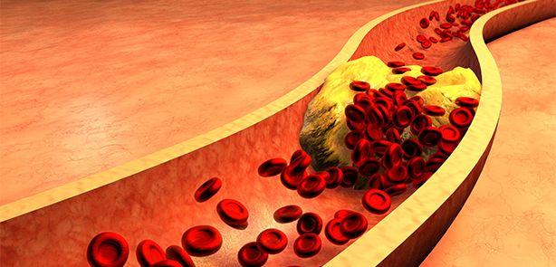 Află cea mai eficientă metodă ca să-ți scazi colesterolul.