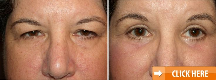 What Every Woman in Her 30s Should Know About Aging Skin. rejuvenize peel. Demi Moore. #rejuvenize #peel #calvert #rejuvenations #rejuvenations #spa