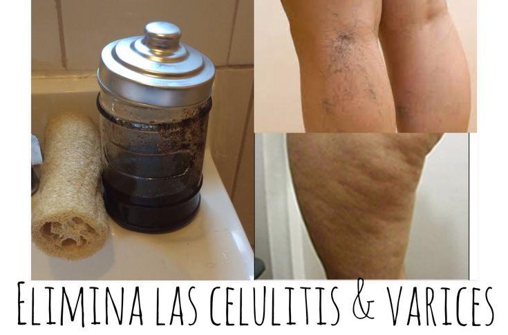 Exfoliante de CAFE: Elimina Celulitis y Varices