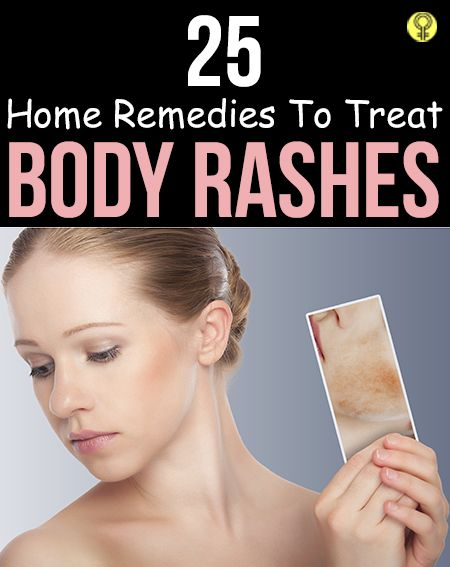 25 Effective Home Remedies To Treat Body Rashes