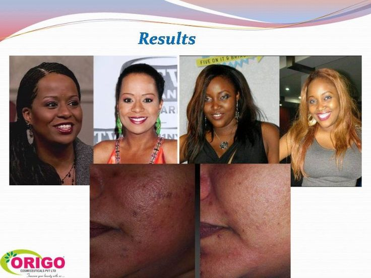 some of glutathione injectable before and after pics. Results are not typical. www.whitechic.net
