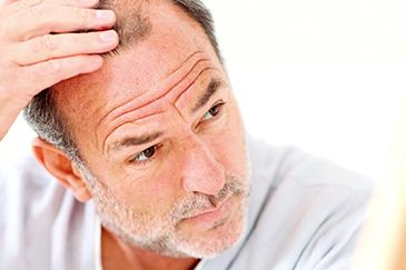 Many men do not identify their hair loss until it has become fairly advanced  See more: http://www.hair-transplant-europe.com/male-hair-loss/