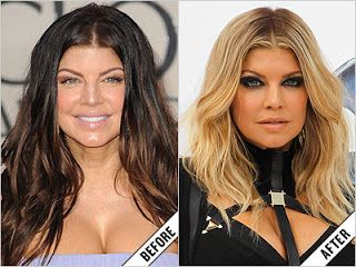 Chatter Busy: Fergie Plastic Surgery