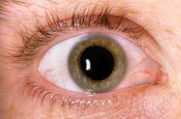 Como limpar os olhos com conjuntivite - 8 passos - umComo