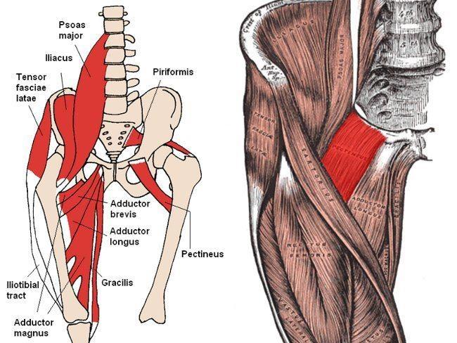 TENDINITIS en los ADUCTORES:  Grupo d músculos que mueven la articulación de la cadera: los aductores,cierran las piernas. El que más se afecta es el tendón del musculo aductor largo. Cuando es sometido a sobrecargas se inflama en su inserción en el hueso de la pelvis en la zona del pubis.  Síntomas  Suele aparecer dolor en el pubis o en la cara interna del muslo que se intensifica al realizar ejercicio que implique separación de ambas piernas o bien cerrar las piernas contra resistencia.