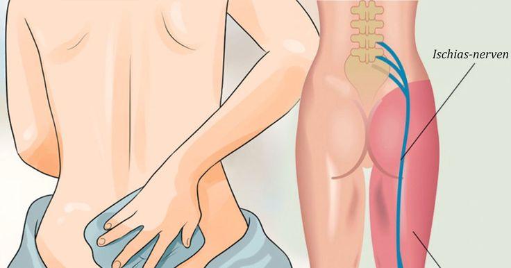 8 natuurlijke manieren om zenuwpijn (ischias) te genezen. Vermijd medicijnen en voel je gelukkiger!