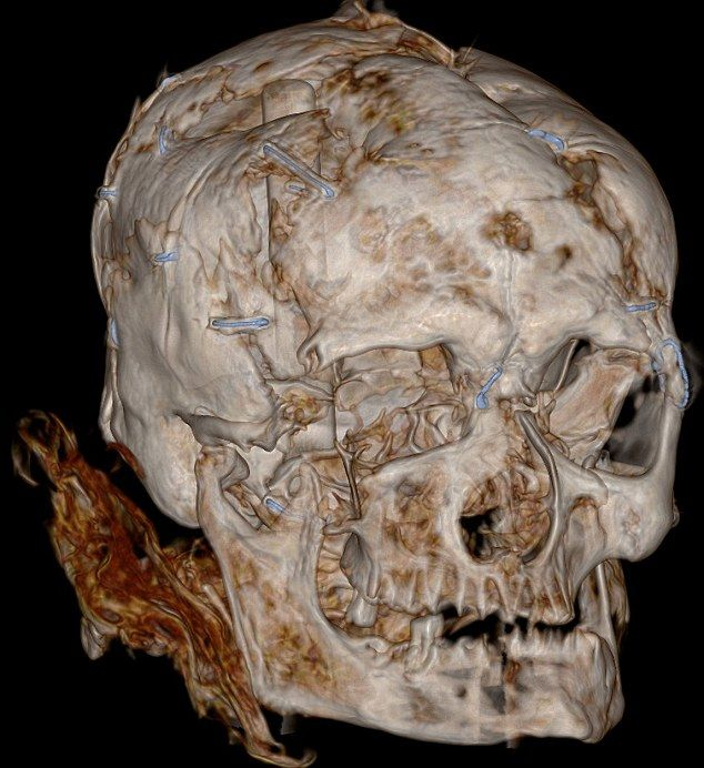 A CT scan of the Iron Age 'Worsley Man' has shown that he was bludgeoned over the head, strangled, then beheaded - and the level of violence has led archaeologists to speculate that it may have been a pagan ritual.