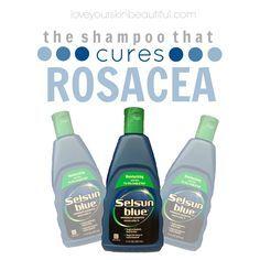 selsun blue rosacea cure